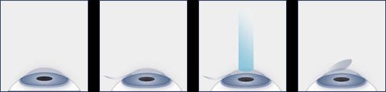 LASIK Eye Surgery Procedure
