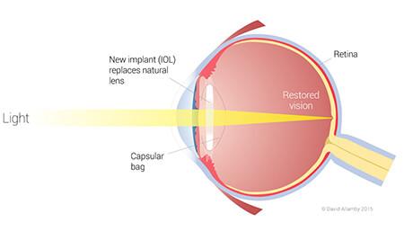 Lens Exchange Example